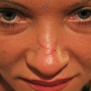 Laser treatment case 4 (scar removal) – Before