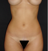 Liposuction case 1- Periumbilical lipoaspiration – After
