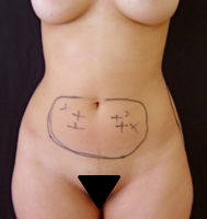 Liposuction case 1- Periumbilical lipoaspiration – Before