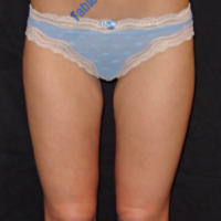 Liposuction case 2- Lipoaspiration in knee area – After