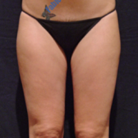 Liposuction case 2- Lipoaspiration in knee area – Before