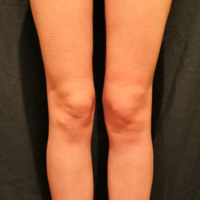 Liposuction case 3- Knee and calf lipoaspiration – After