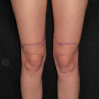 Liposuction case 3- Knee and calf lipoaspiration – Before