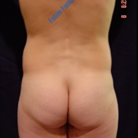 Liposuction case 4- 'Love handles' removal – Before