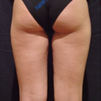 Liposuction case 5- Treatment of cellulite – Before