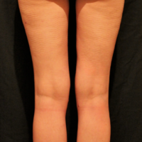 Liposuction case 6- Lipoaspiration of culottes, knees and calves – After