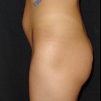 Liposuction case 7- Liposuction of abdominal region – Before