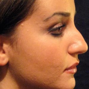 Rhinoplasty case 2 (dorsum and tip) – Before