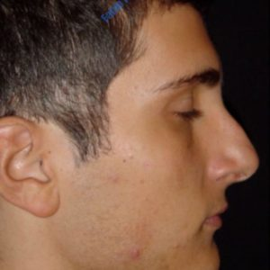 Rhinoplasty case 3 (dorsum and septum) – Before