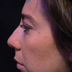 Rhinoplasty case 7 (dorsum) – Before