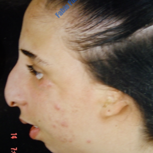 Treacher-Collins Syndrome, full profile reconstruction – Before