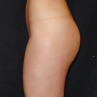 Treatment of abdominal and culottes areas – After