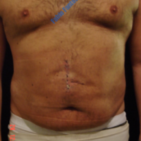 Abdominoplasty after incisional hernia – After