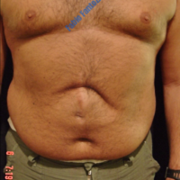 Abdominoplasty after incisional hernia – Before