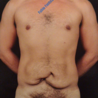 Abdominoplasty after multiple hernias – Before