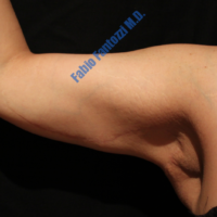 Arm Lift case 2a – After