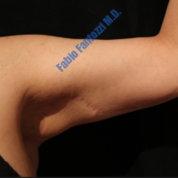 Arm Lift case 2b – After