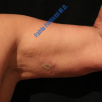 Arm Lift case 3b – After
