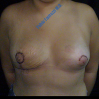 Correction of congenital assymetrical breast (case 2) – After