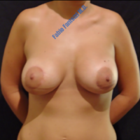 Correction of congenital assymetrical breast (case 4) – After