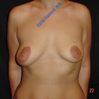 Correction of congenital assymetrical breast (case 4) – Before