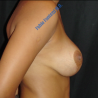 Correction of congenital assymetrical breast (case 5) – After