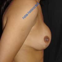 Correction of congenital assymetrical breast (case 5) – Before