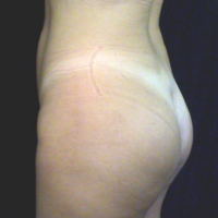 Gluteal Augmentation with implants, case 1a – After