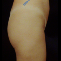 Gluteal Augmentation with implants, case 1b – Before
