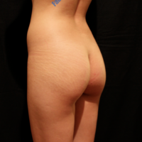Gluteal Augmentation with implants, case 2a – Before