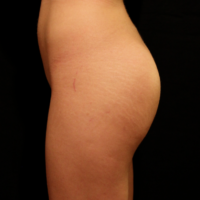 Gluteal Augmentation with implants, case 2b – After