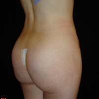 Gluteal Augmentation with implants, case 3 – After