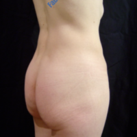 Gluteal Augmentation with implants, case 3 – Before