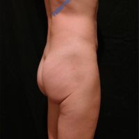 Gluteal Augmentation with implants, case 4 – After