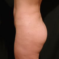 Gluteal Augmentation with implants, case 5 – After