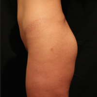 Gluteal Augmentation with implants, case 5 – Before