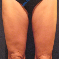 Inner thigh lift including liposuction, case 2 – After