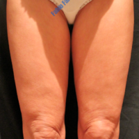 Inner thigh lift including liposuction, case 2 – Before
