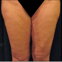 Inner thigh lift including liposuction, case 3 – After