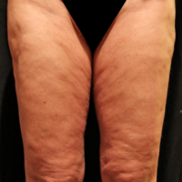 Inner thigh lift including liposuction, case 3 – Before