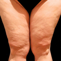 Inner thigh lift including liposuction, case 4 – After