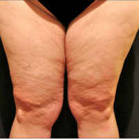Inner thigh lift including liposuction, case 4 – Before