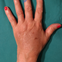 Lipo-Filling hands – Case 1 – After