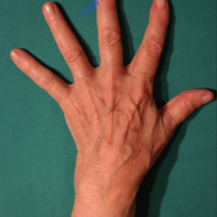 Lipo-Filling hands – Case 1 – Before