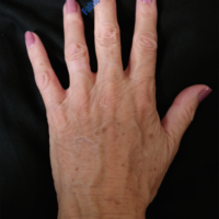 Lipo-Filling hands – Case 2a – After