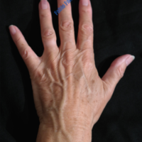 Lipo-Filling hands – Case 2a – Before