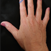 Lipo-Filling hands – Case 2b – After