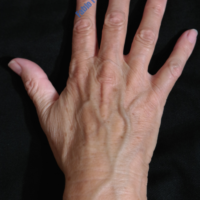 Lipo-Filling hands – Case 2b – Before