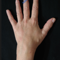 Lipo-Filling hands – Case 3b – After