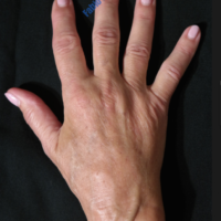 Lipo-Filling hands – Case 4a – After